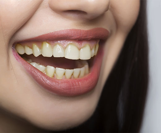 Teeth Whitening Crawley | Tooth Whitening Services Crawley - before