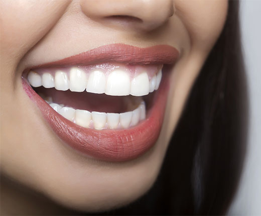 Teeth Whitening Crawley | Tooth Whitening Services Crawley - after